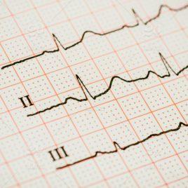 Introduction to Basic EKG Tutorials