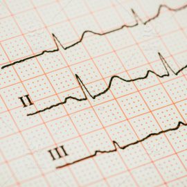 Learn to Read Electrocardiograms